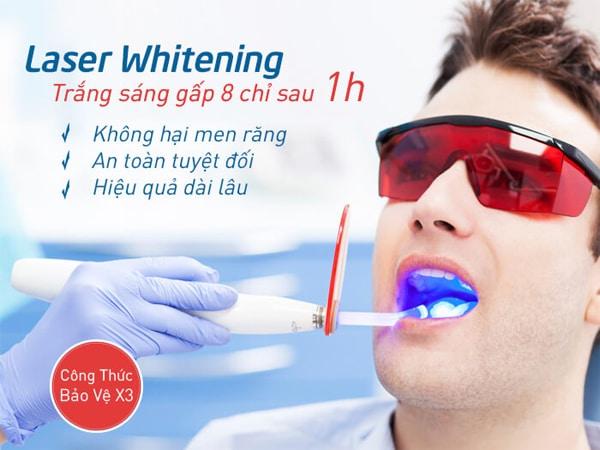phương pháp làm trắng răng bằng công nghệ cao