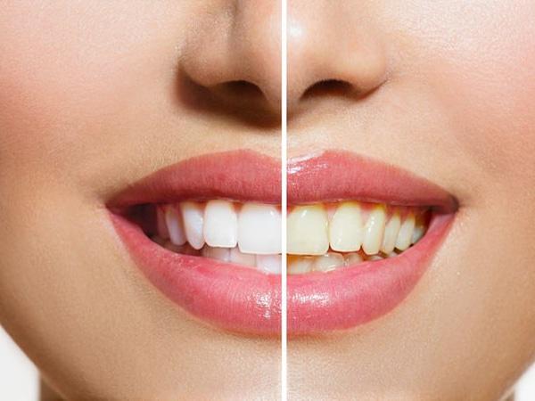 Răng bị ngả vàng