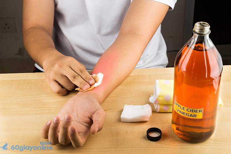 Sử dụng tăm bông hoặc tay sạch để thoa thuốc mỡ kháng sinh nhưBacitracin,Neosporin.