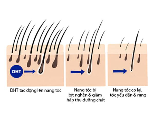 Quá trình rụng tóc thường gặp do bị ảnh hưởng bới các loại bệnh về da đầu