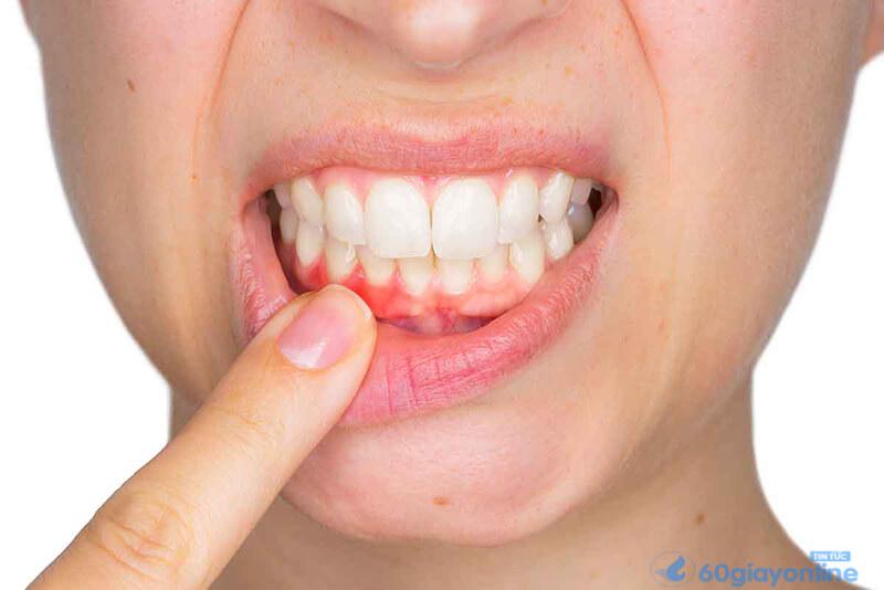 Răng bị bào mòn sẽ dẫn đến các cơn đau thường xuyên