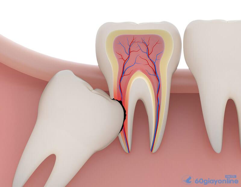 Hầu như ai cũng trải qua con đau do răng khôn